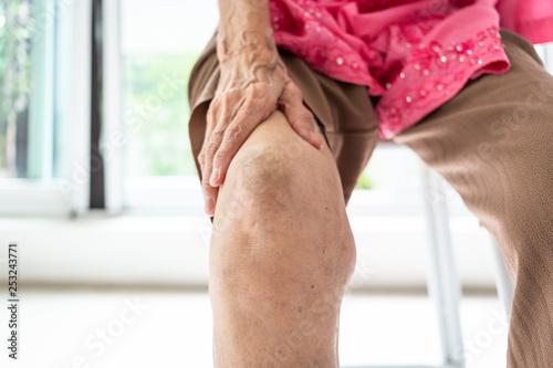 Obraz na płótnie Arthriti,osteoarthritis of the knee,Elderly woman sitting on chair,holding hand