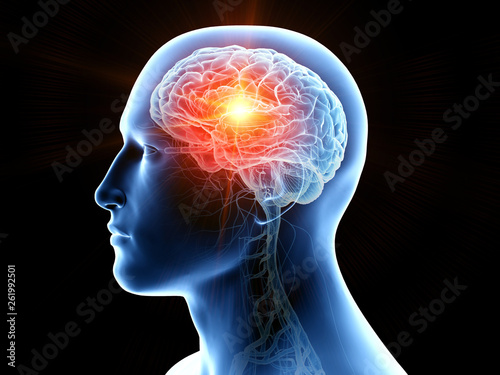 Foto 3d rendered medically accurate illustration of human brain cancer