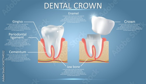Obraz na plátně Human tooth and dental crown, vector educational poster