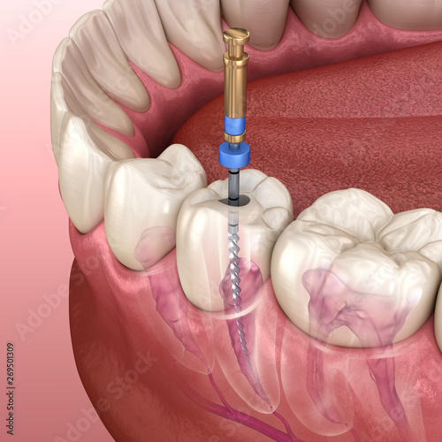 Fotografija Endodontic root canal treatment process