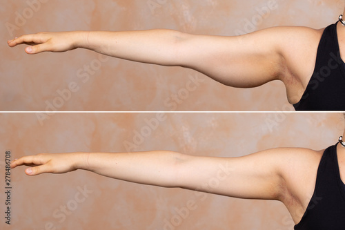 Fotografia A before and after view of a young Caucasian lady who had a brachioplasty