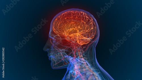 Canvas Print 3d rendered illustration of  brain tumor and brain disease 3D illustration