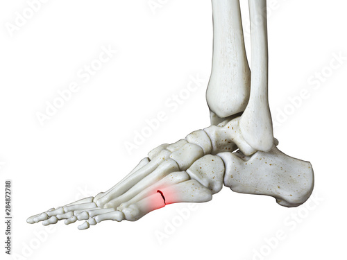 Stampa su Tela 3d rendered medically accurate illustration of a broken foot