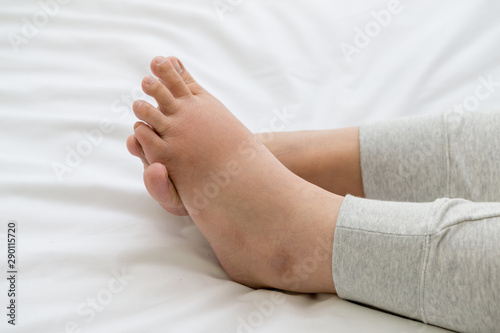 Fotografia Pregnant women with swelling feet, pain foot and lying on bed in the room