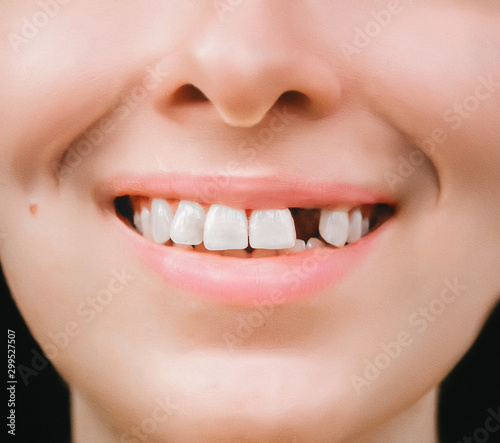 Canvas Print Smile of a young woman without one front tooth