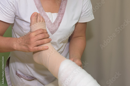 Obraz na płótnie Lymphedema management: Wrapping leg using multilayer bandages to control Lymphedema