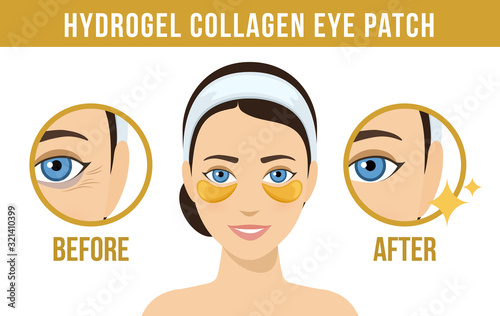 Obraz na płótnie Before and after hydrogel eye patches