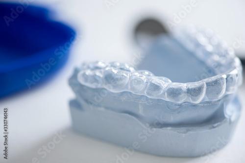 farblose Aufbisschiene auf Gipsmodell in der Zahnarztpraxis, Entlastung der Zahn Fototapeta