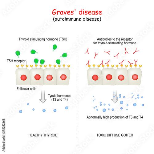 Fotografia Graves' disease. autoimmune disorder.