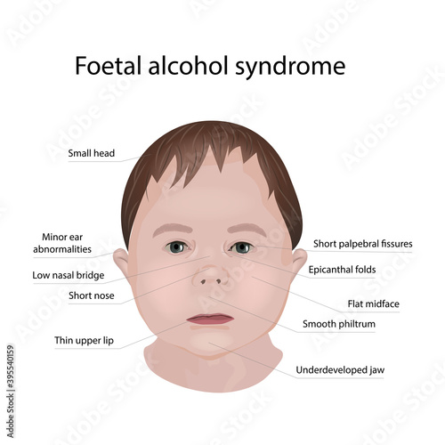 Stampa su Tela Illustration showing the effects of foetal alcohol syndrome on a child's face