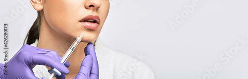 Fotografia Lip augmentation