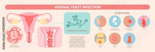 Douche vagina odor clean blood flora ectopic yeast bacterial Pelvic genitals swelling pain sex hygiene system microbes allergic cycle health problem tract prevent mucus Cervical cervix itching cancer
