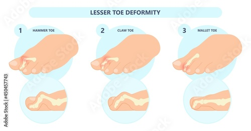 Foto Hammer toe claw morton's hallux valgus curly turf bent joint flexible foot defor