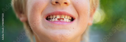Canvas Print Wide view image of a toddler boys smile with missing milk teeth
