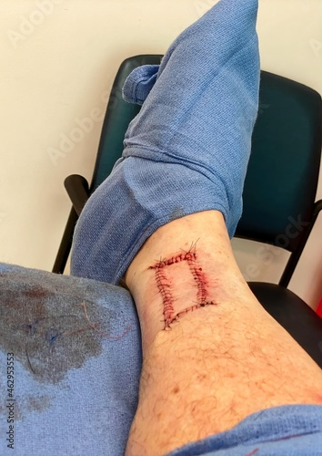 Photo Mohs surgery on right leg showing stitches prior to release to allow healing at